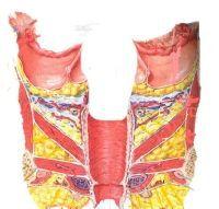 Gebärmutterentfernung regelblutung nach Gebärmutterentfernung (Hysterektomie)
